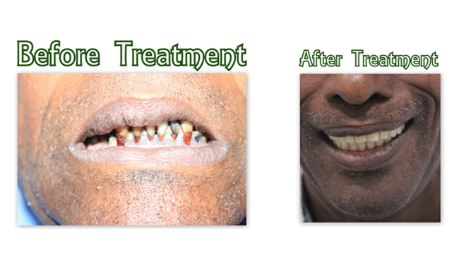 Cost of dental implants in India, Dental Implant price