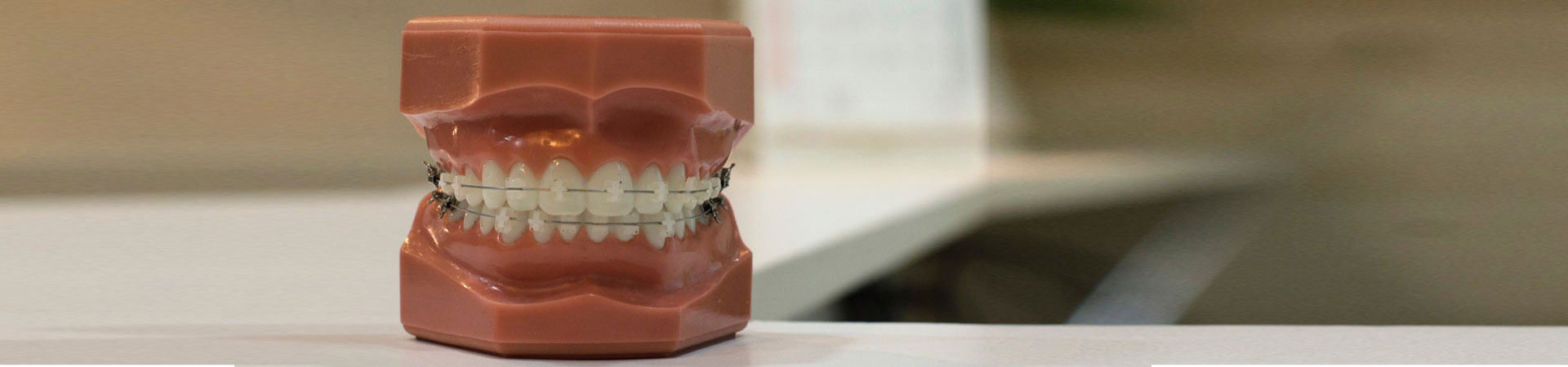 Cost of dental implants in India, Dental Implant price, Dental